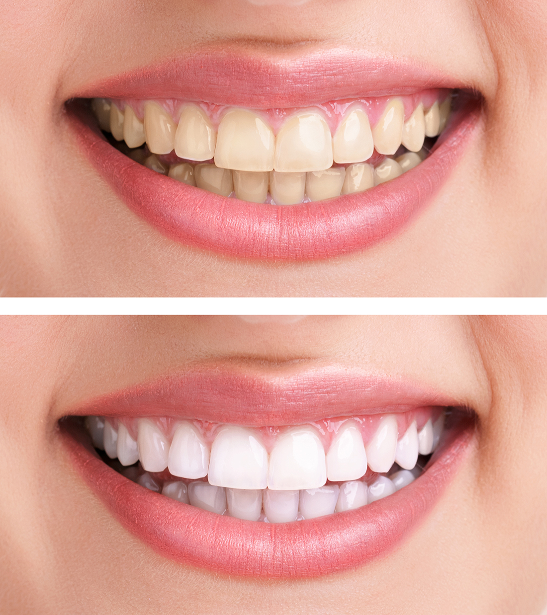 Teeth Whitening Fort Worth Texas