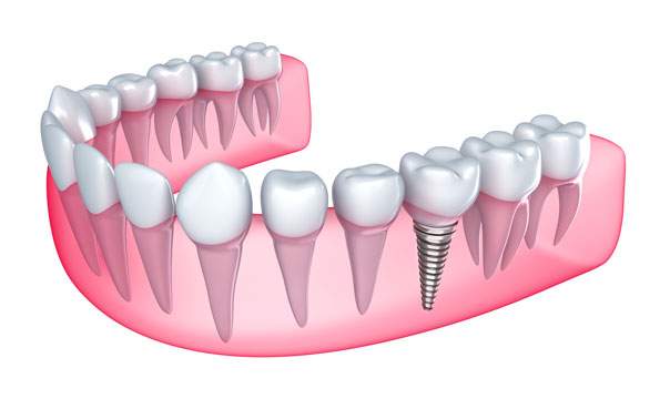 3d Model of Dental Implant