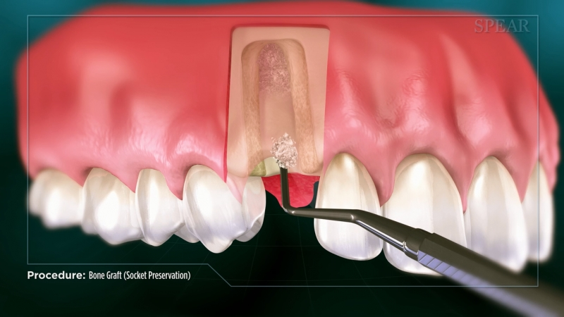 Bone Graft (Socket Preservation)
