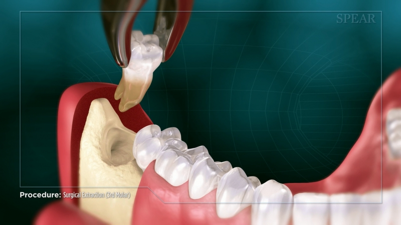 Surgical Extraction (3rd Molar)
