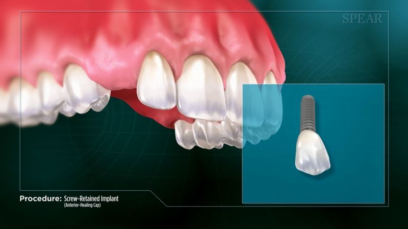 Screw-Retained Implant (Anterior- Healing Cap)