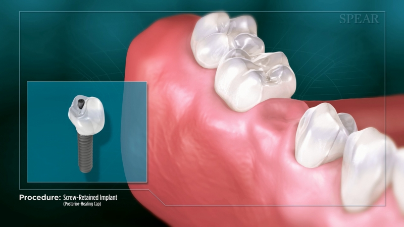 Screw-Retained Implant (Posterior- Healing Cap)
