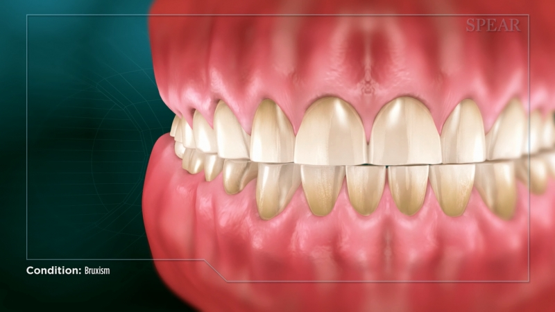 Bruxism (Clenching and Grinding)