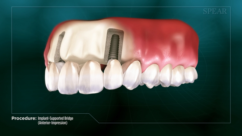 Implant-Supported Bridge (Anterior- Impression)