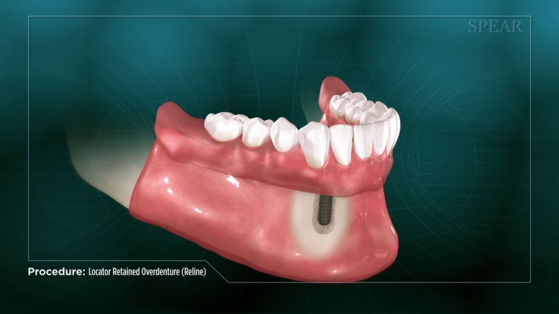 Locator Retained Overdenture (Reline)