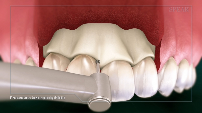 Crown Lengthening (Esthetic)