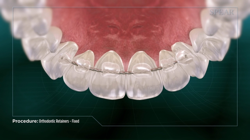 Orthodontic Retainers- Fixed