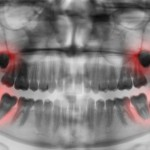 Start by getting an assessment of your wisdom teeth
