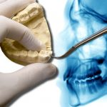 Wisdom Teeth FAQ