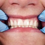 Our Methods for Healthy Gums