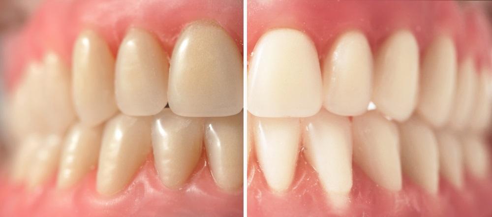 Fort Worth TX teeth whitening