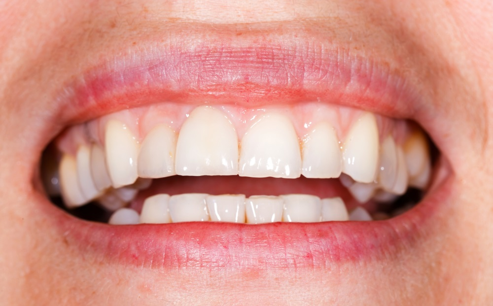This is everything you should know about your canine teeth