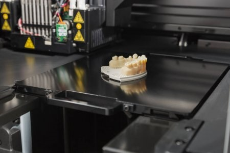 3D Printing in Dentistry