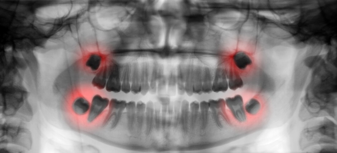 Dental referrals to other specialists: How your mouth can show symptoms of non-oral disease